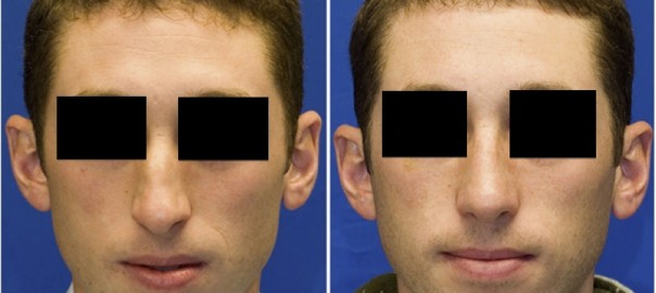 Facial Fracture Before and After Surgery on Male
