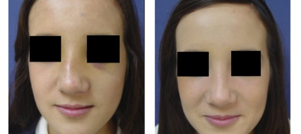 Facial Fracture on Female Before and After Surgery