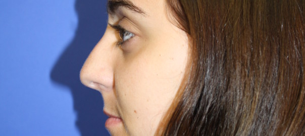 Female, Profile View Before Rhinoplasty Surgery Photo