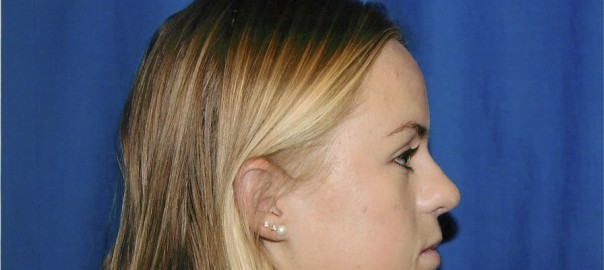 Profile View After Rhinoplasty Surgery