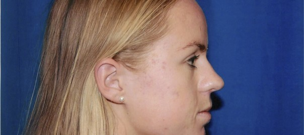Profile View Before Rhinoplasty Surgery