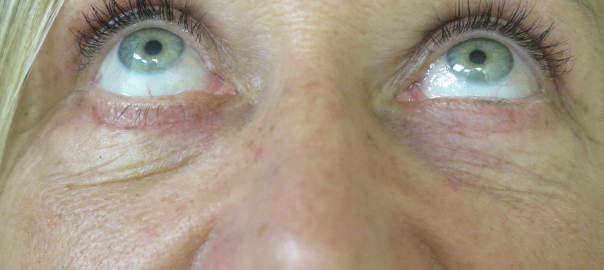 Female Eyes Up View After Blepharoplasty