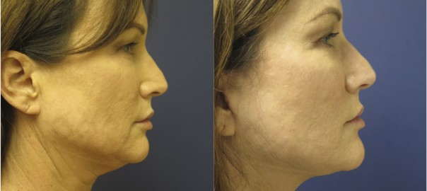 Face and Neck Lift Side Before and After of Female
