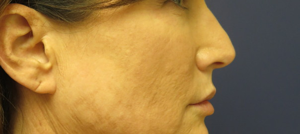 Side Profile Female Before Face and Neck Lift Surgery