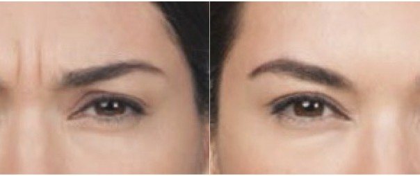 Botox Center Brow Before and After