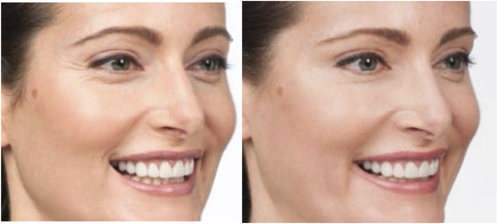 how to get rid of jowls without plastic surgery