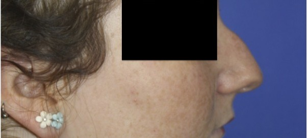 Female Profile Before Rhinoplasty with Nose Bump