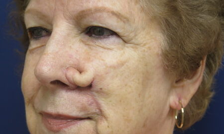 First Inset Before Mohs Reconstruction on Female Patient