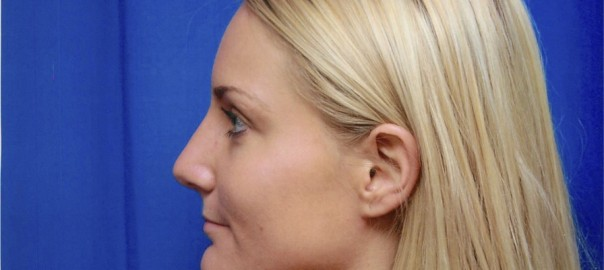 After Rhinoplasty Surgery to Remove Bump in Nose, Left Side