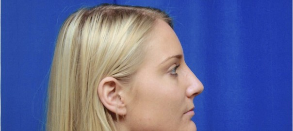 After Rhinoplasty Surgery to Remove Bump in Nose