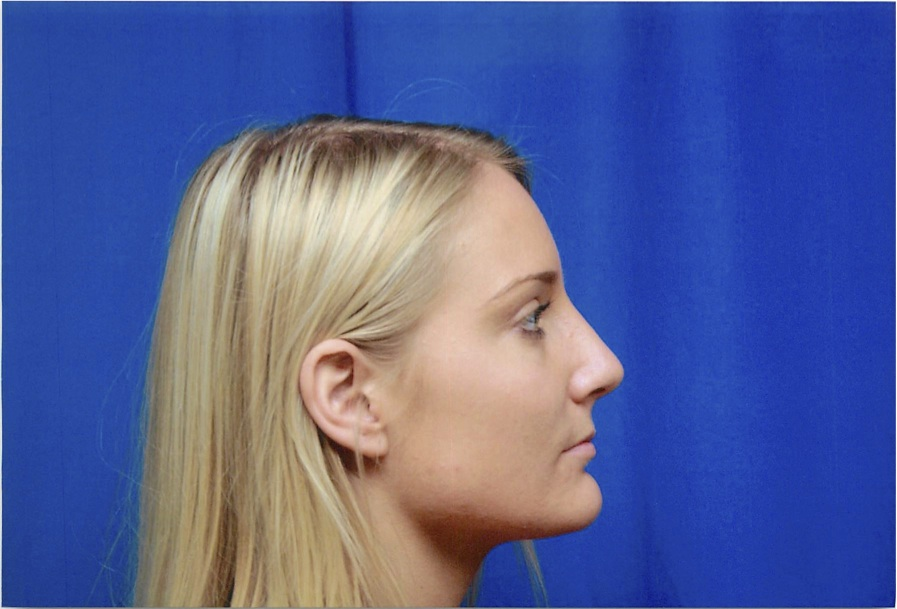 Female Profile View, Bump in Nose After to Rhinoplasty