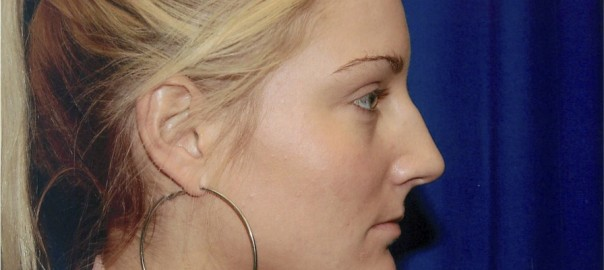 Before Rhinoplasty Surgery to Remove Bump in Nose