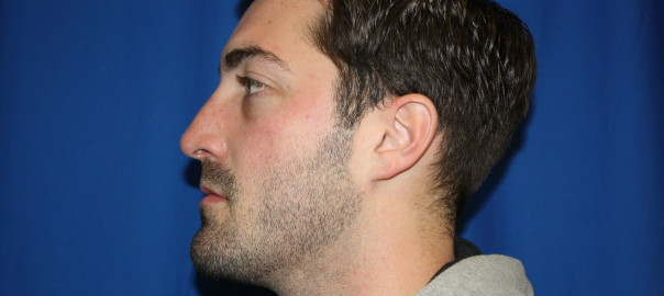 Male Rhinoplasty After Photo, Shape Change Left Side