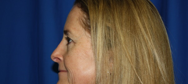 Rhinoplasty Surgery After Photo, Fix Top Nose Bump