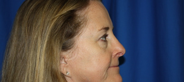 Rhinoplasty Surgery After Photo, Fix Nose Bump