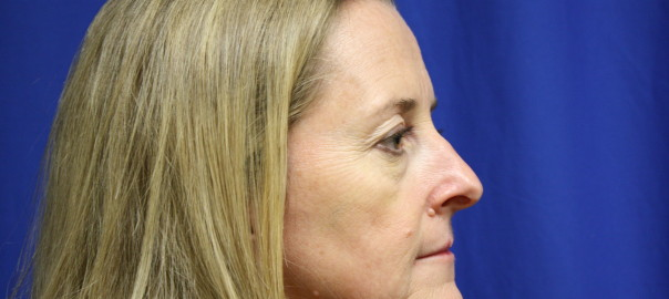 Rhinoplasty Surgery Before Photo, Fix Nose Bump