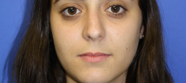 Rhinoplasty Patient 8 Front Before | CV ENT Surgical Group
