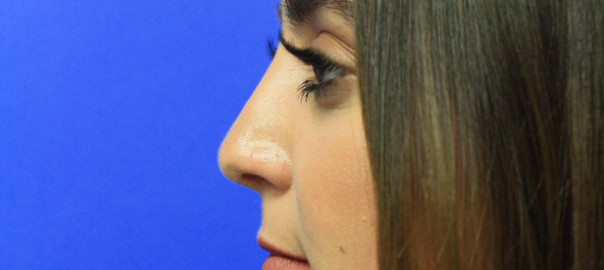 Female, Profile View After Rhinoplasty Surgery Photo