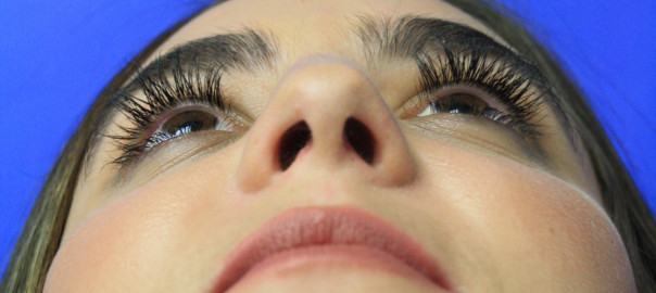 Looking Up View After Rhinoplasty Surgery