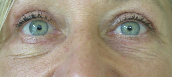 Eyes Close Up After Blepharoplasty