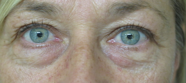 Eyes Close Up Before Blepharoplasty