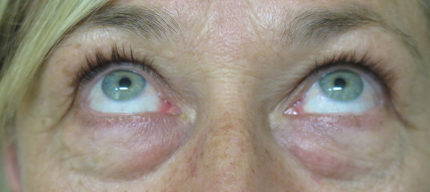 Female Eyes Up View Before Blepharoplasty
