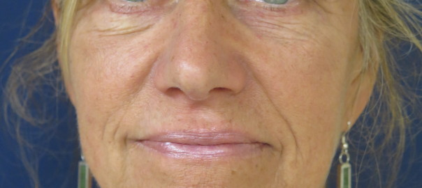 Front Photo of Eyes After Blepharoplasty