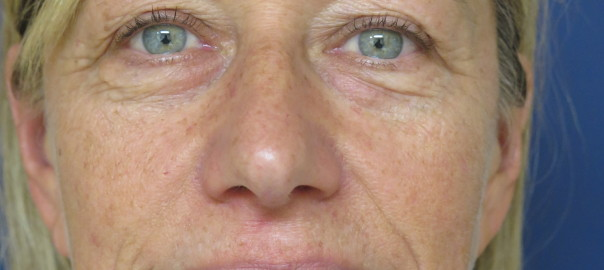 Front Photo of Eyes Before Blepharoplasty
