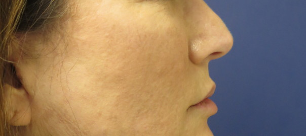 Side Profile Female After Face and Neck Lift Surgery