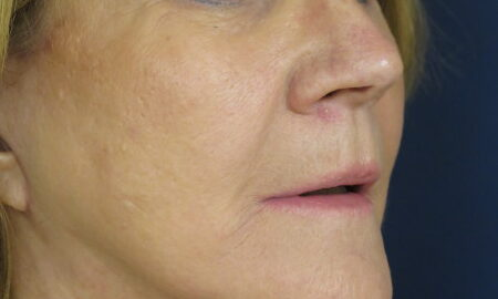 Female After Profile Face and Neck Lift Surgery