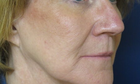 Female Before Profile Face and Neck Lift Surgery