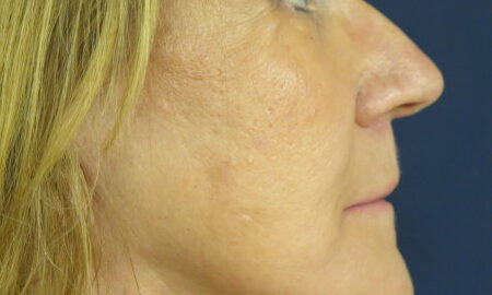 Female After Photo from Face and Neck Lift