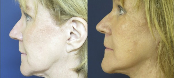 Before and After Photo of Face and Neck Lift