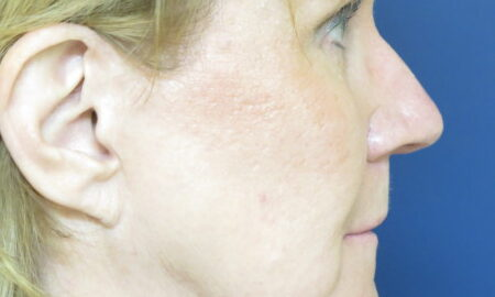 Female Before Photo Face and Neck Lift