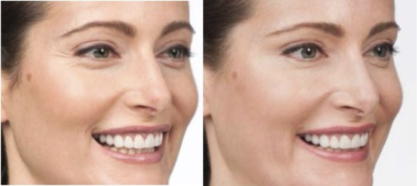 Botox Crows Feet Before and After | CV ENT Surgical Group