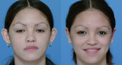 Otoplasty Surgery, Before and After Photo