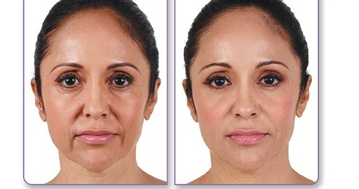 dermal fillers before and after in face