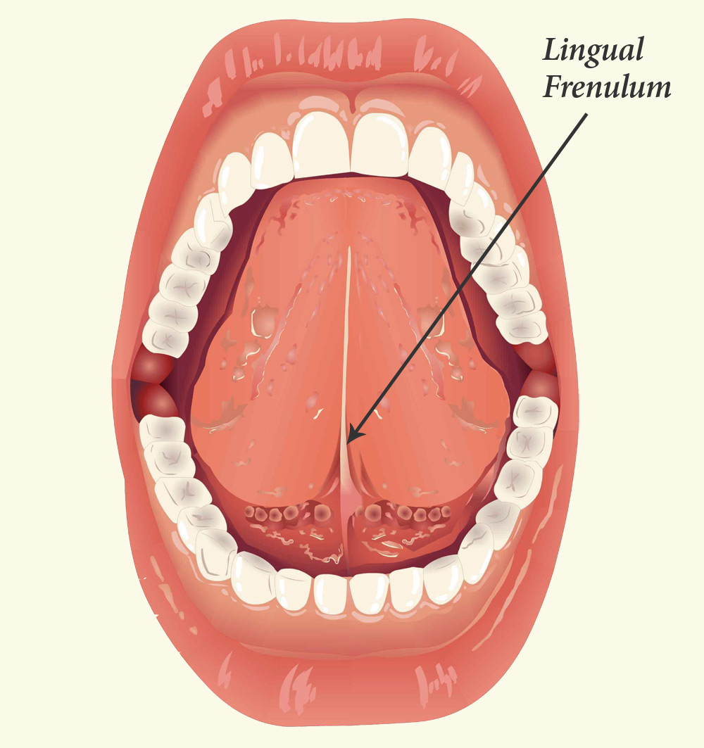 Tongue Tie | CV ENT Surgical Group
