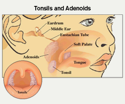 Tonsils and Adenoid