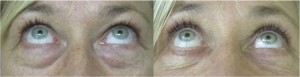 Upper and Lower Blepharoplasty Before and After Photo, Looking Up
