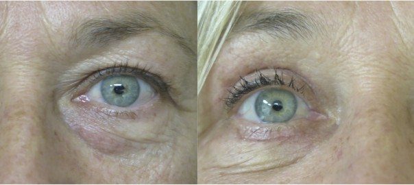 Blepharoplasty Before and After Photo